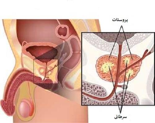 بهترین درمان سرطان پروستات پیشرفته بدخیم