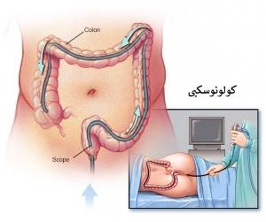 تشخیص سرطان روده