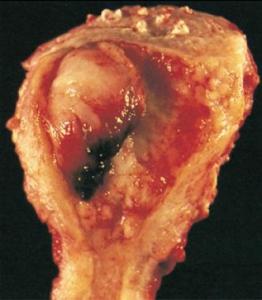 عکس سرطان رحم