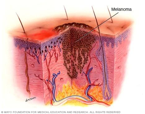 سرطان پوست+ملانوم