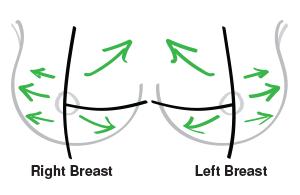 درمان سنتی برای کیست سینه