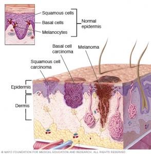 سرطان پوست bcc