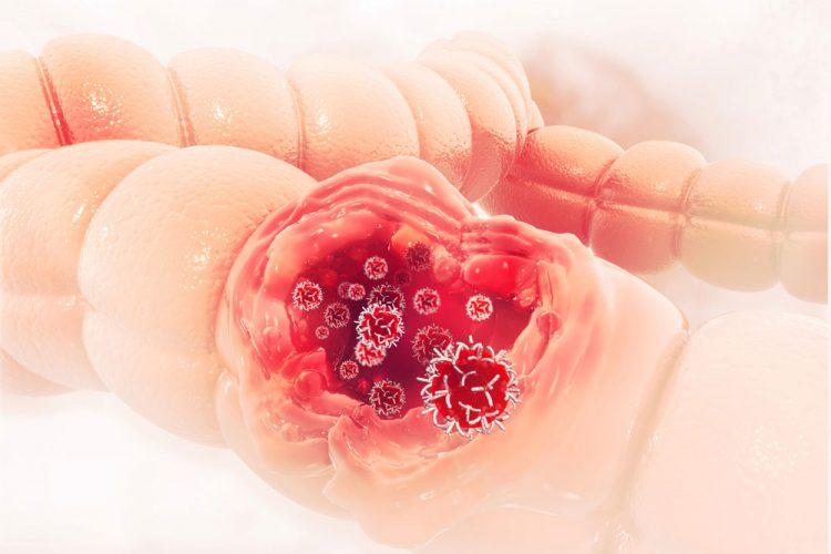 سرطان روده چیست | آیا سرطان روده بزرگ قابل درمان است؟