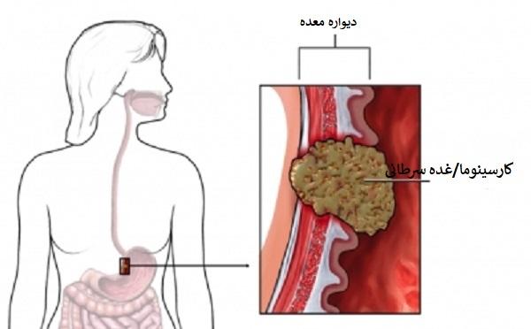 علائم اولیه سرطان های دستگاه گوارش: سرطان معده