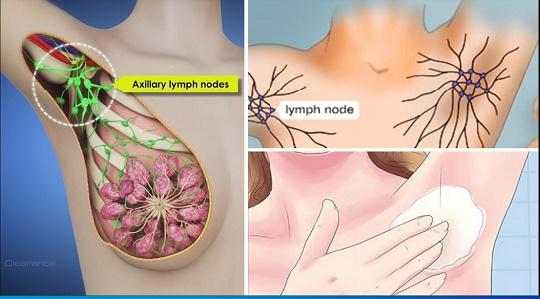 علائم سرطان زیر بغل