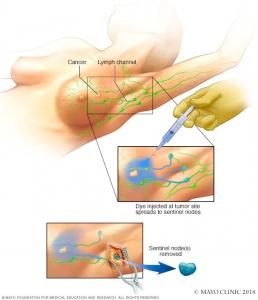 علائم سرطان التهابي سينه