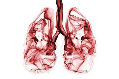 سرطان ریه-بهترین روش های درمان سرطان در ایران