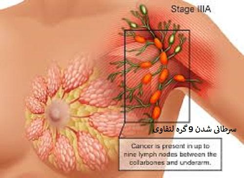 سرطان زیر بغل لنفوما