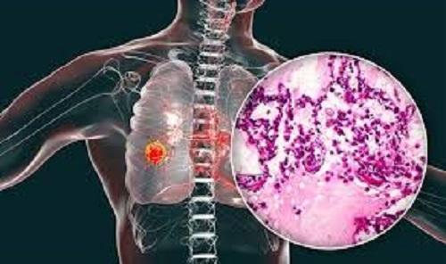 سرطان ریه: تشخیص، پیشگیری و بهترین درمان ها
