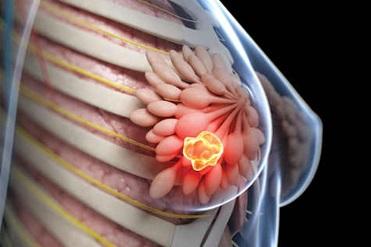 غربالگری سرطان پستان چیست؟