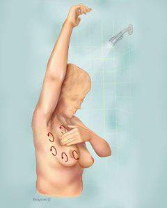 مراحل تشخیص سرطان سینه