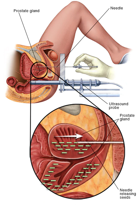 سرطان پروستات بدخیم