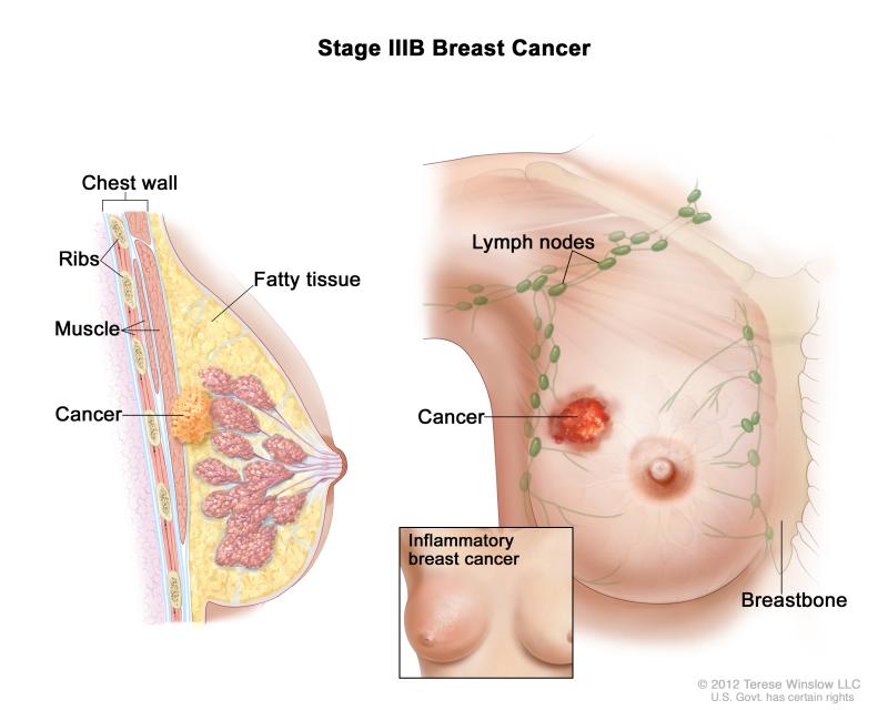 سرطان سینه گرید 3 نی نی سایت