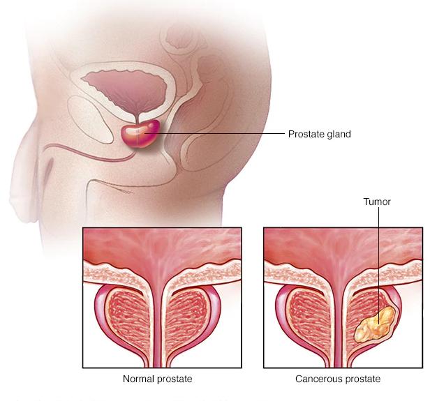 شایع ترین علائم پروستات