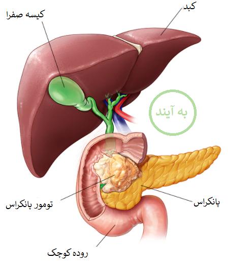 سرطان پانکراس بدخیم
