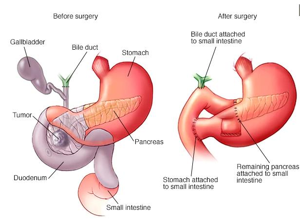 درمان سرطان پانکراس بدخیم