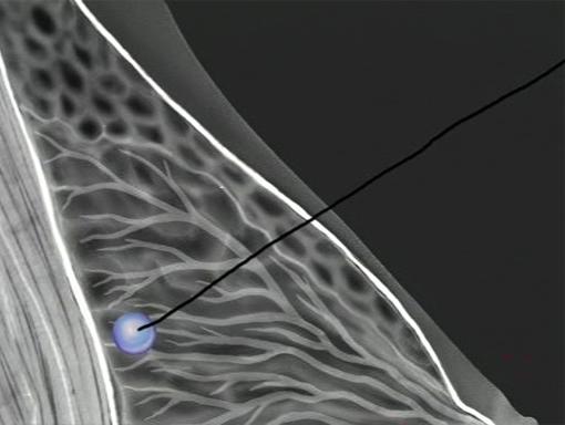 فیلم جراحی سرطان سینه