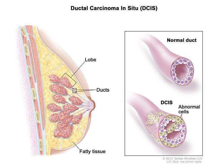 مرحله صفر سرطان سینه