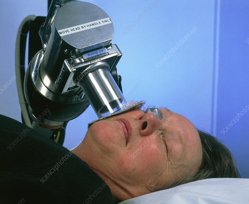 رادیوتراپی سرطان پوست