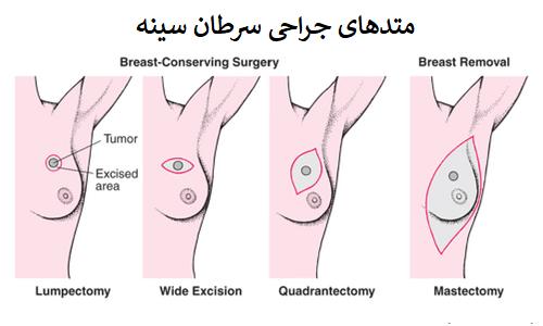 جراح سرطان سینه در تهران