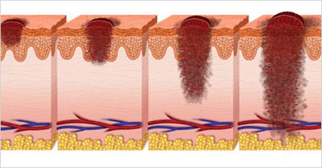 آیا سرطان پوست واگیردار است