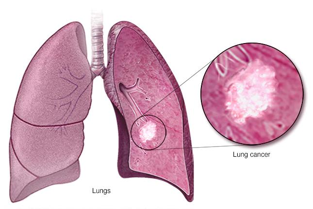 علائم سرطان ریه نی نی سایت