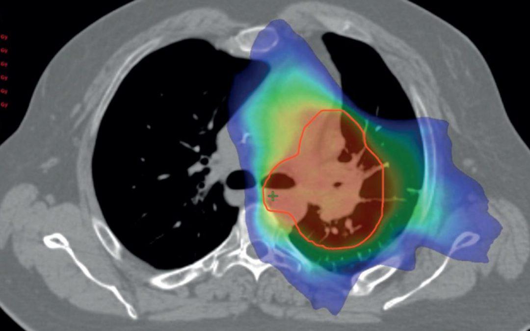 پرتودرمانی سرطان ریه | درمان سرطان ریه با پرتو درمانی