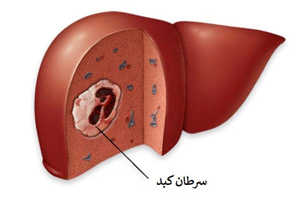 انواع سرطان کبدی