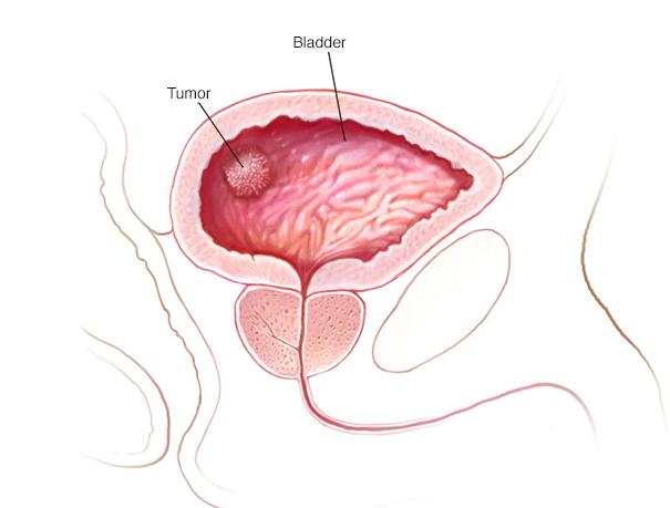 علائم سرطان مثانه نی نی سایت