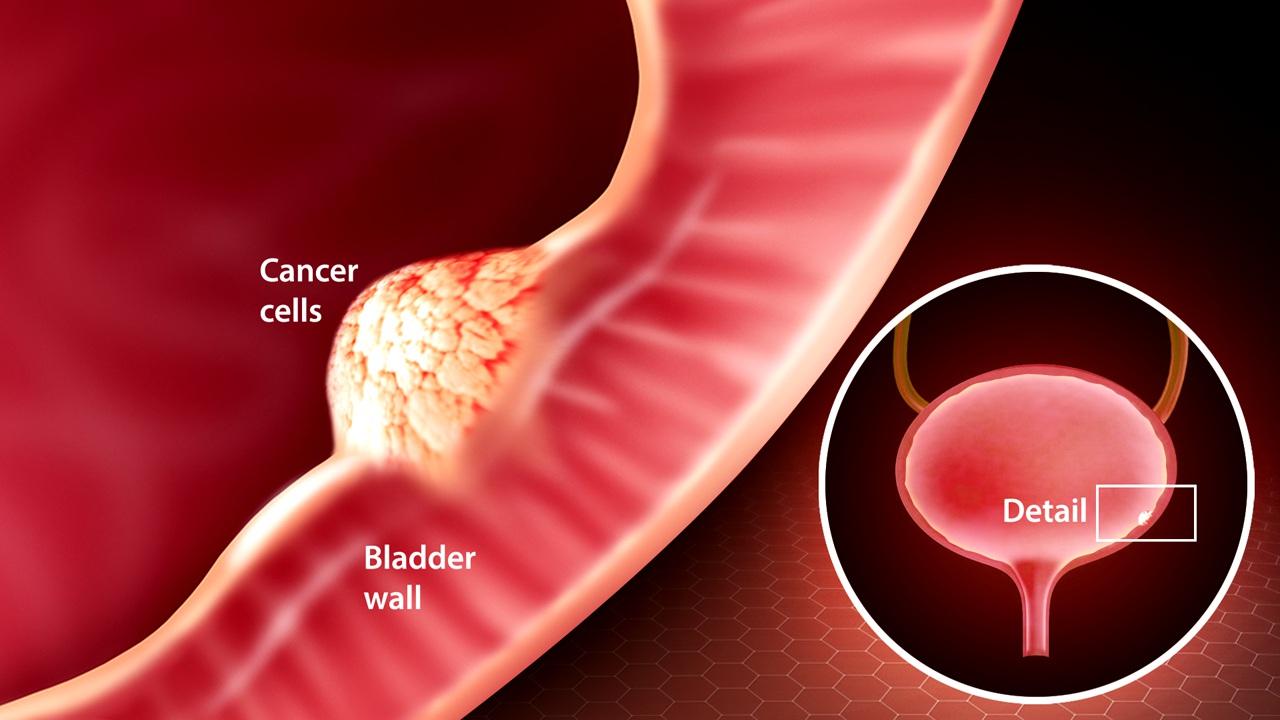 سرطان مثانه در مردان