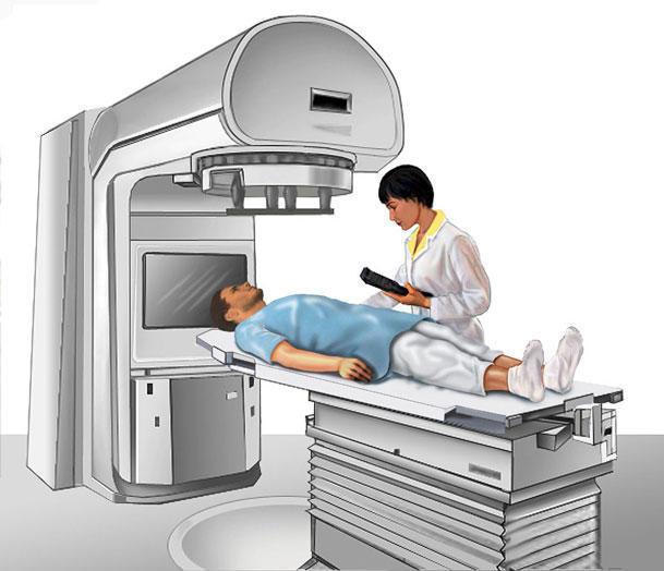 درمان سرطان مثانه در مردان