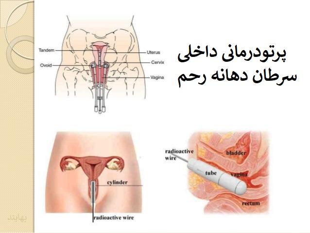 رادیوتراپی سرطان دهانه رحم