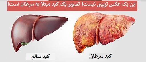 پیشگیری سرطان کبد