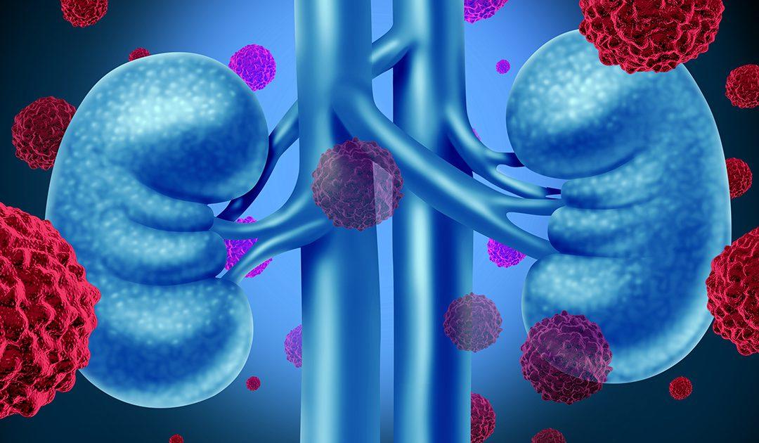 همه چیز درباره سرطان کلیه | درمان سرطان کلیه