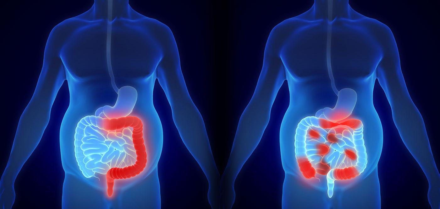 علائم سرطان در مردان چیست