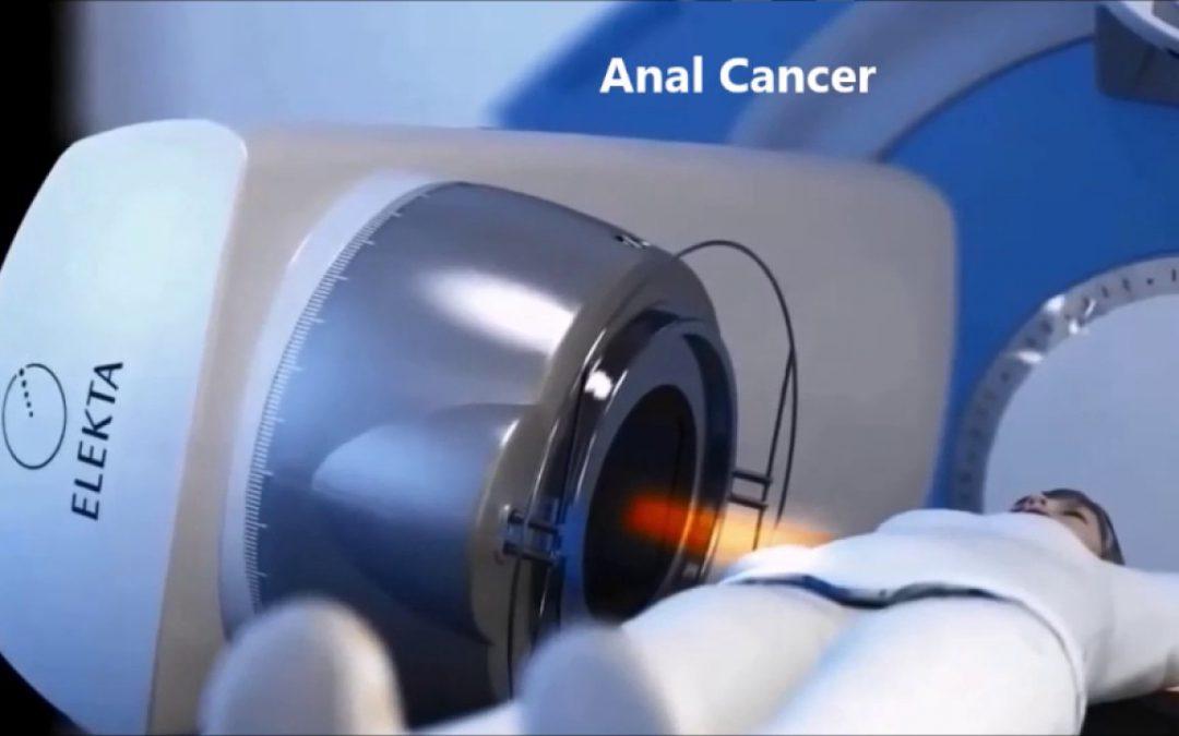 پرتو درمانی برای سرطان مقعد تا چه حد موثر است؟