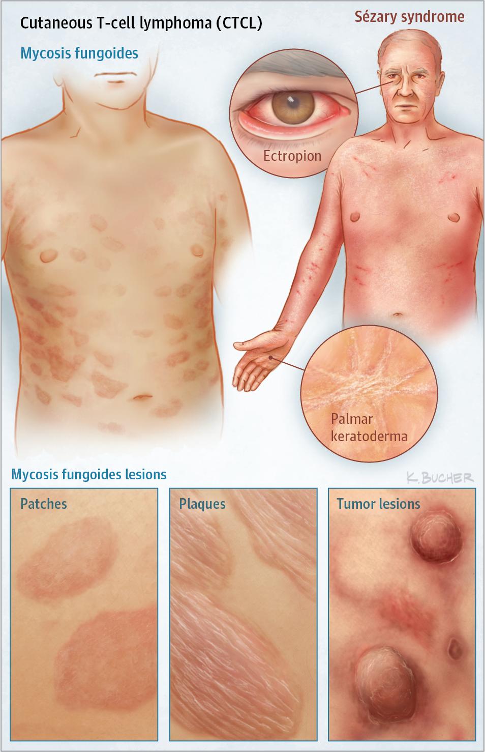 لنفوم سلول T پوستی