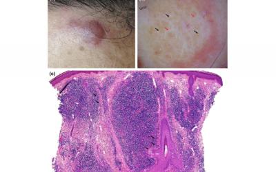 لنفوم سلول B پوستی یا Cutaneous B-cell lymphoma چیست؟