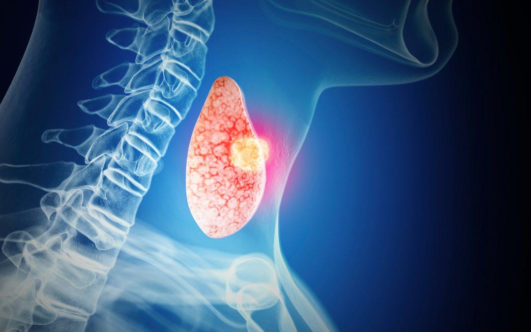 سرطان تیروئید | بخش دوم مقابله و درمان