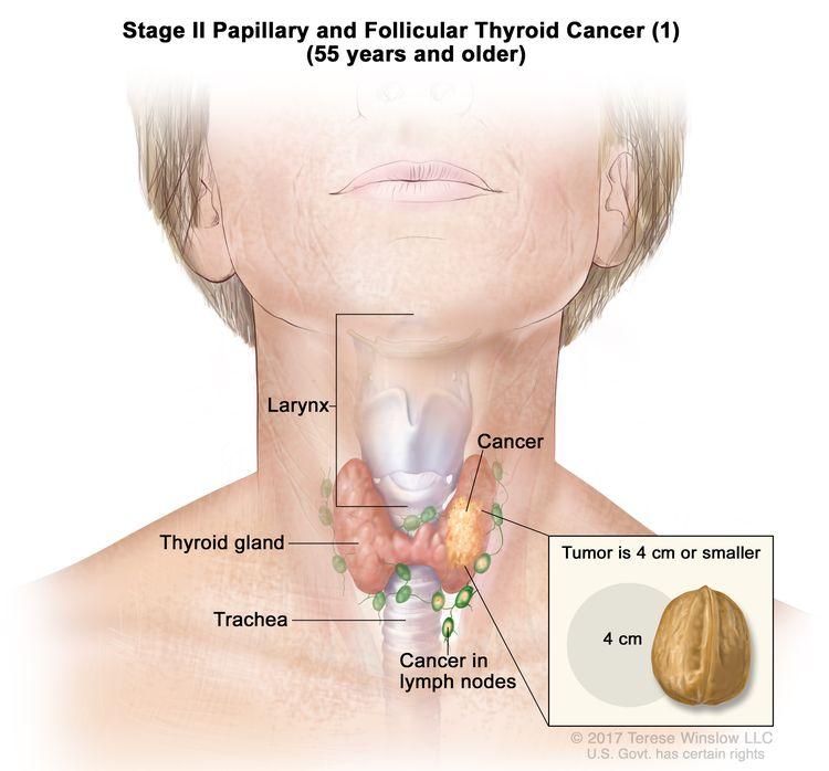 سرطان تیروئید مدولاری