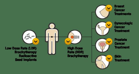 عوارض پرتودرمانی داخلی