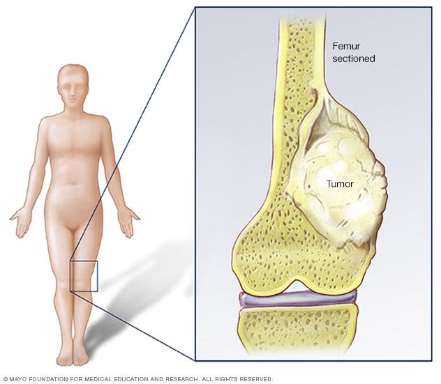 علائم سرطان بازو چیست