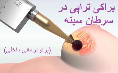 براکی تراپی یا پرتودرمانی داخلی برای سرطان سینه