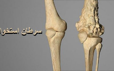 سرطان استخوان چیست | آیا سرطان استخوان درمان دارد