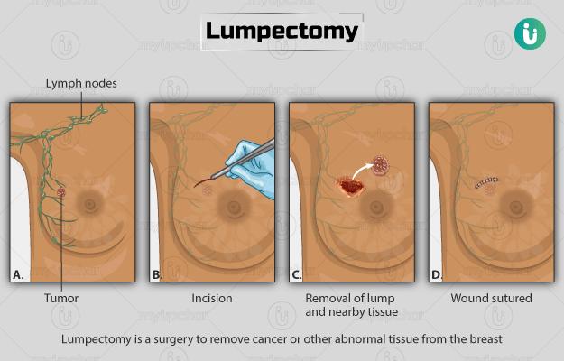 هزینه عمل جراحی سرطان سینه