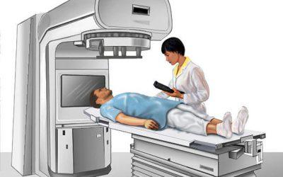 انواع رادیوتراپی : پرتودرمانی خارجی