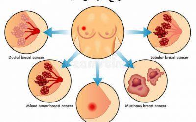 انواع سرطان سینه و زیرگروه های آن