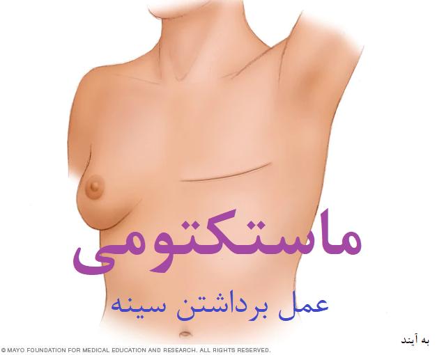 جراحی ماستکتومی چیست | عمل جراحی برداشتن سینه در زنان