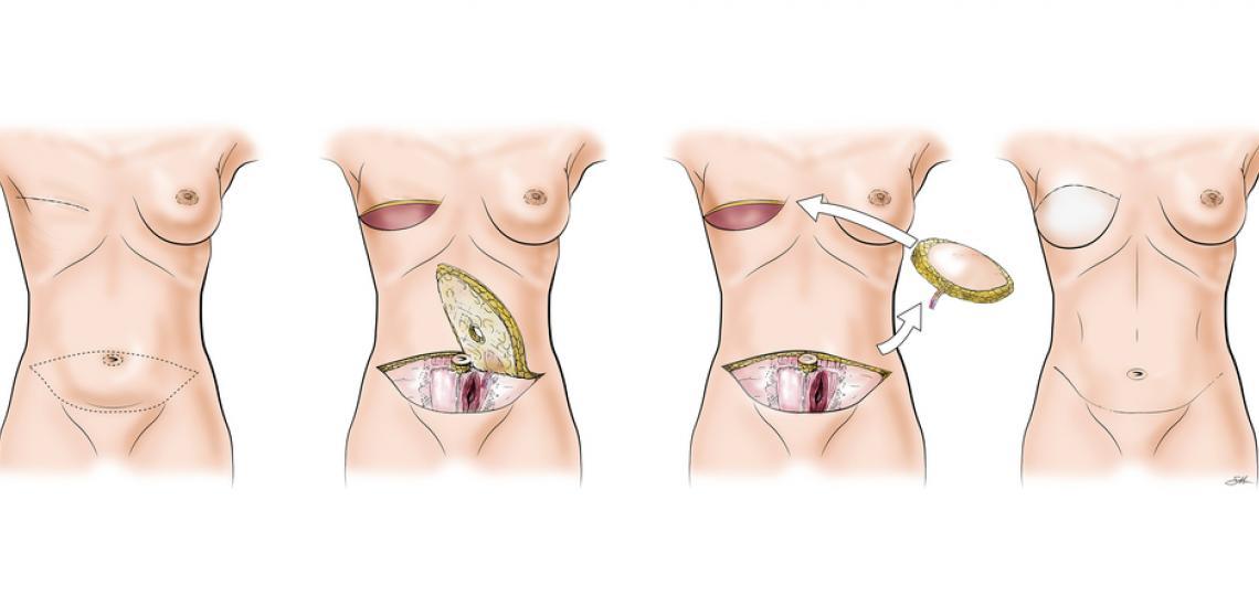 عمل ترمیم پستان
