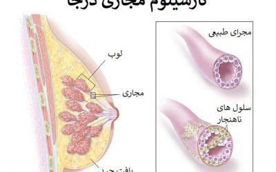 کارسینوم داکتال درجا چیست | DCIS چیست